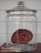 The Man With Two Brains original movie prop